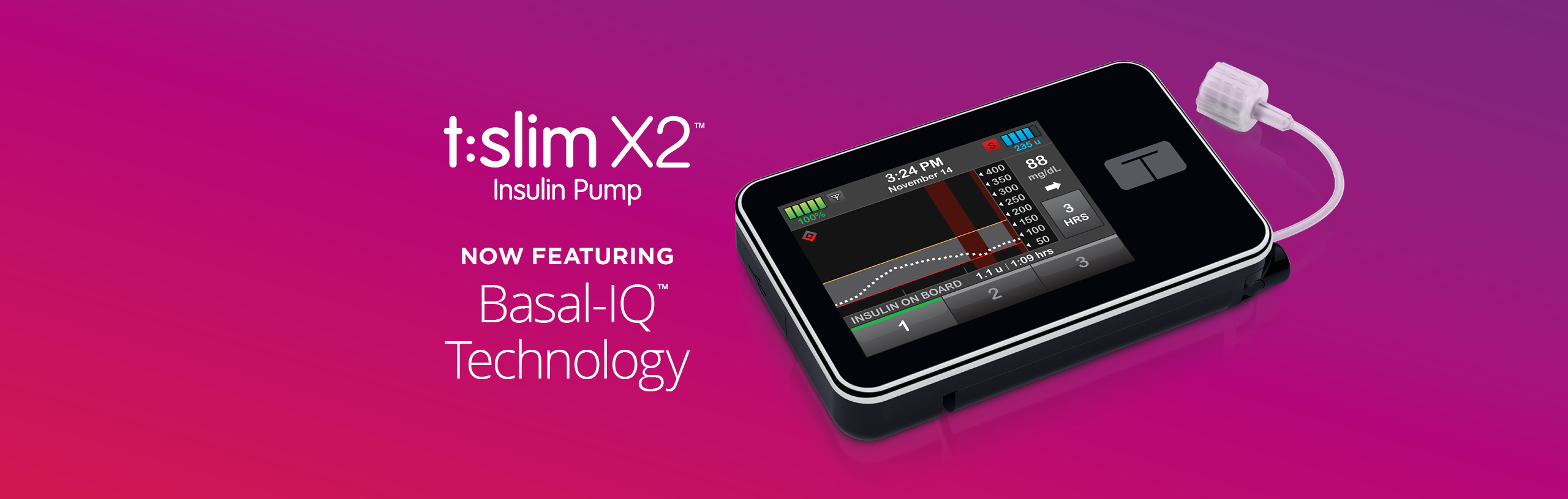 The Basal-IQ™ Technology Update is Here, and We're Answering